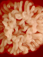 CandidaAlbicansColonia