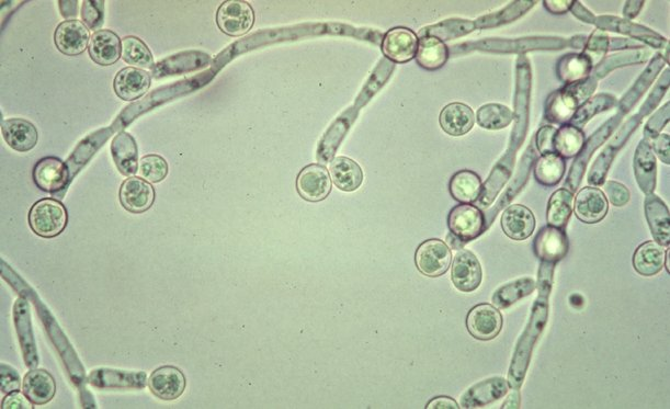 candida-albicans-picture1