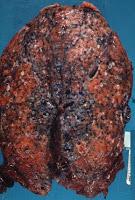 lungFibrozis