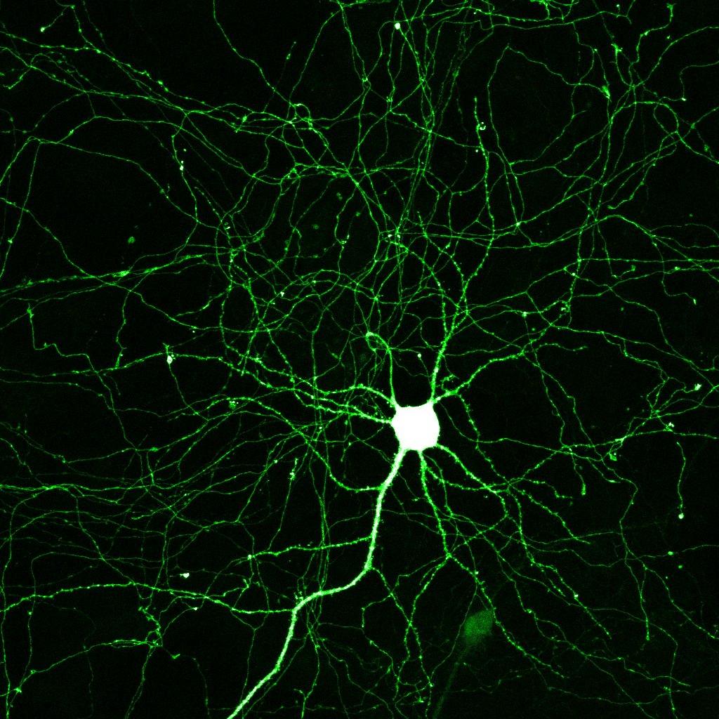 neuron_1